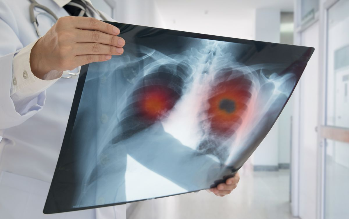 lung cancer scan