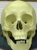 Cast of a human skull