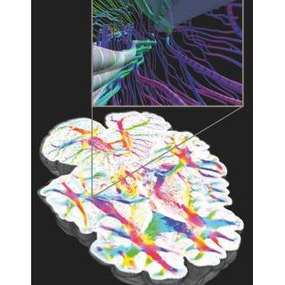 Brain Research Image