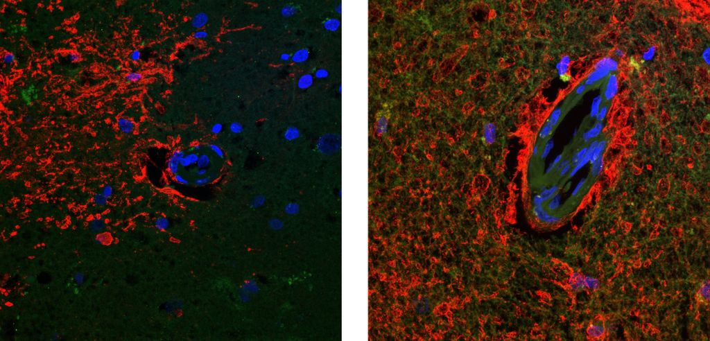 Alzheimers Cognitively Vessels