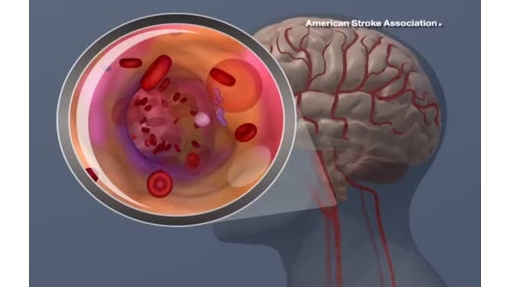 Ischemic Stroke Animation