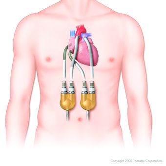 Lvads May Lead To Declines In Health Cognitive Thinking