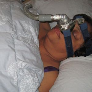Sleep and Sleep Apnea