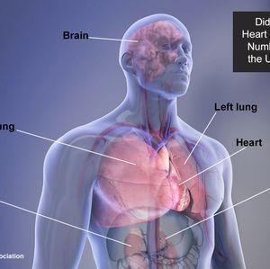 AHA/ASA Medical Graphics and Illustrations